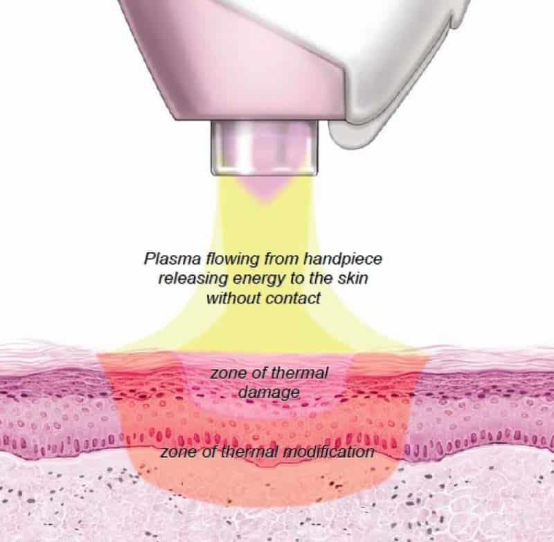 Neogen Plasma treatment
