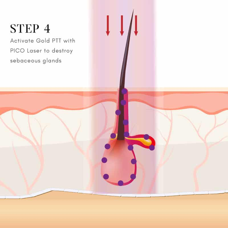 Step 4 – Activation of Gold PTT using PICO laser