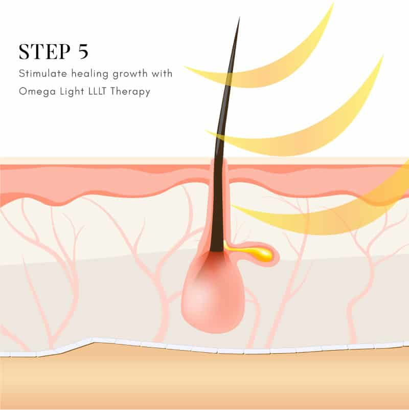 Step 5 – Omega Light LLLT Therapy