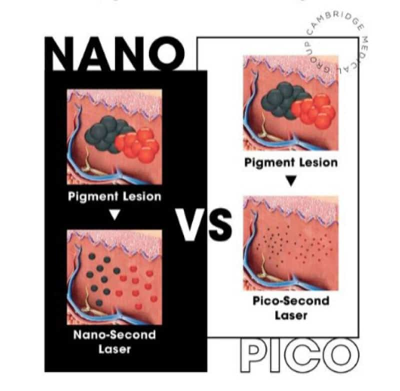 Pico laser description