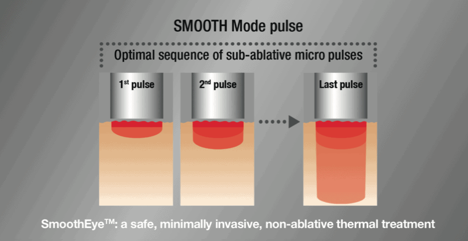 SMOOTH Mode pulse