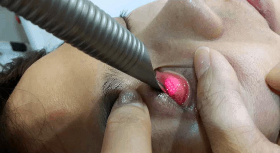 Fotona Laser Eyebag Removal