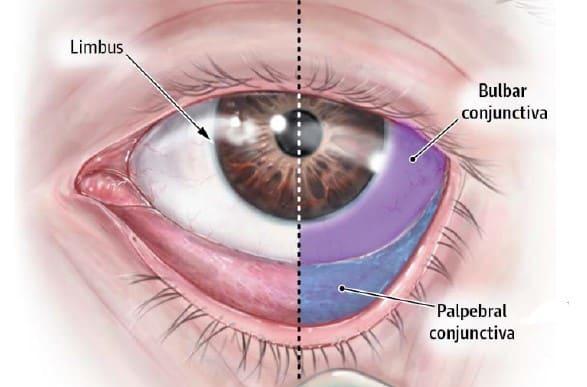 Fotona® Laser Eyebag Removal