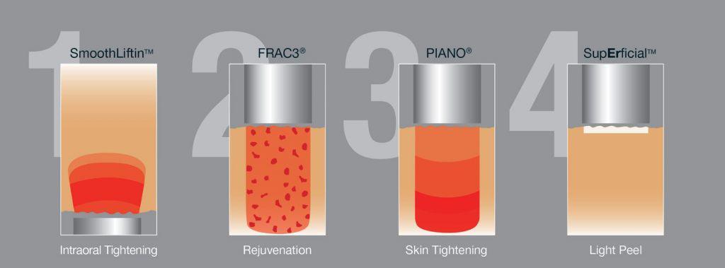 How Fotona 4D Lifting Works