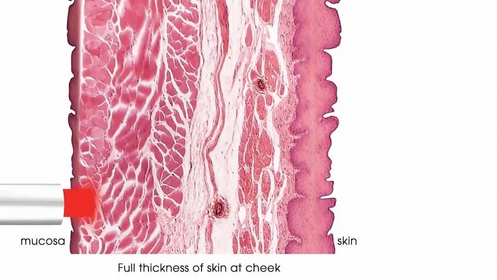 SMOOTH - Restores volume in sagging skin