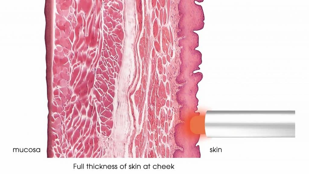 SupErficial – A light micro-laser peel to reduce imperfections such as fine lines and pores