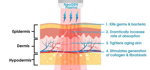 NeoGEN Plasma EyeLIFT