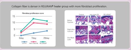 Collagen fiber is denser in REJURAN
