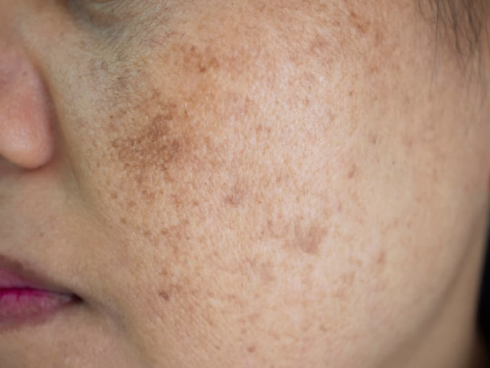 Pigmentation on woman's cheek