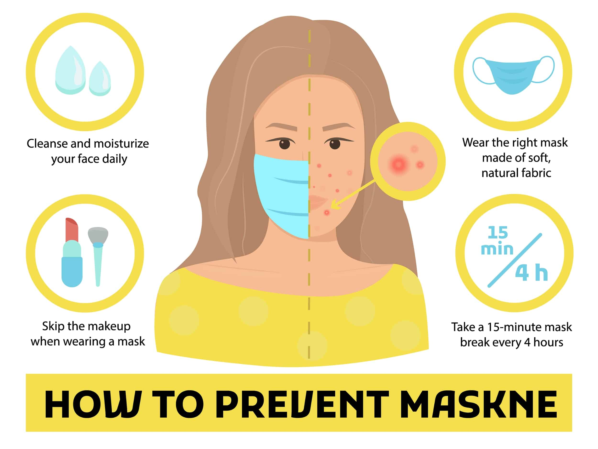 how to prevent acne from masks