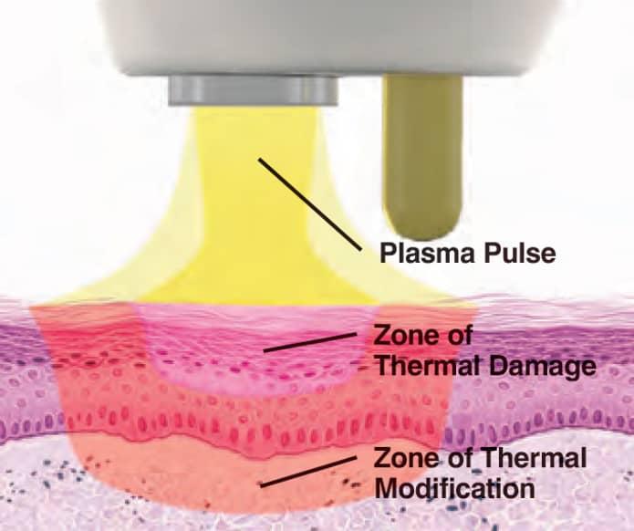 led light acne treatment diagram explanation