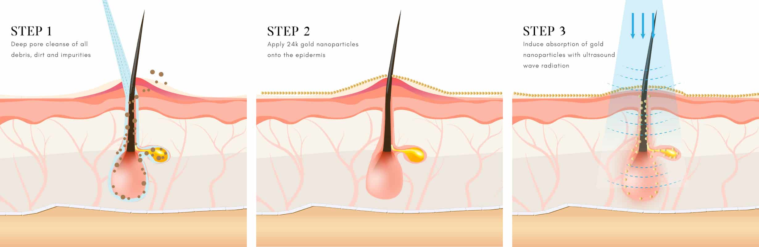 acne treatment diagram steps