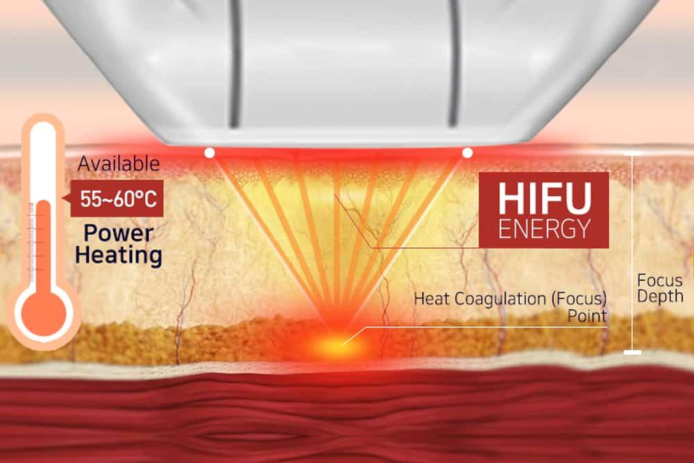 hifu facelift diagram