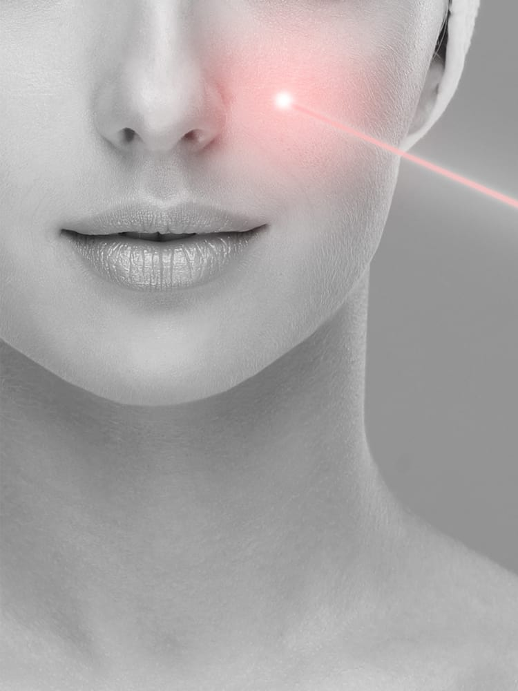 pico vs traditional laser for face treatment