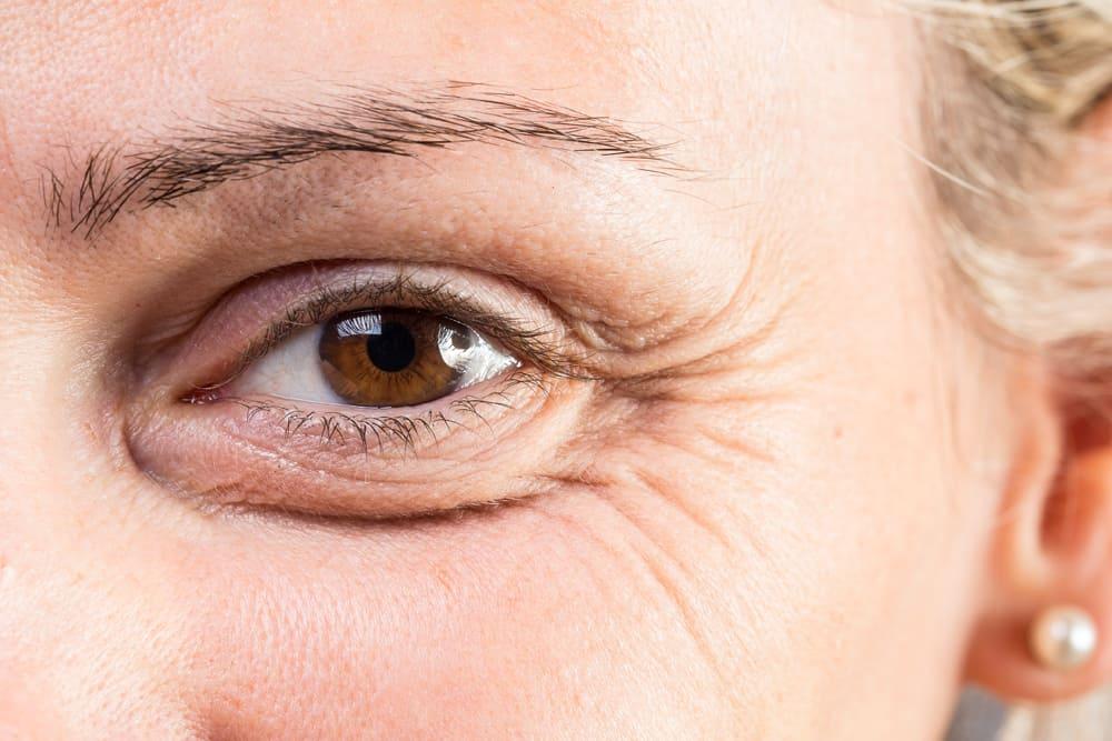 fine line wrinkles